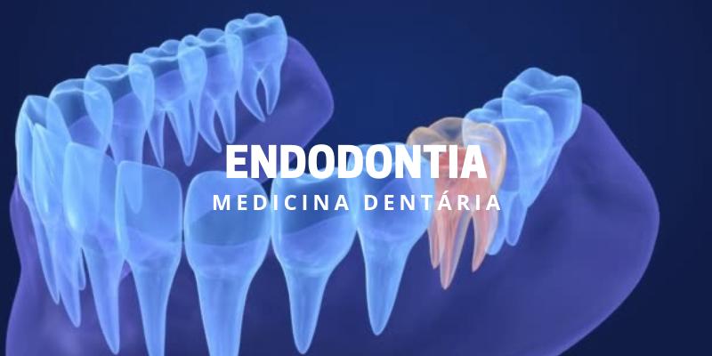 endodontia, Clínica Dentária Rosário Saramago, Dentista Entroncamento